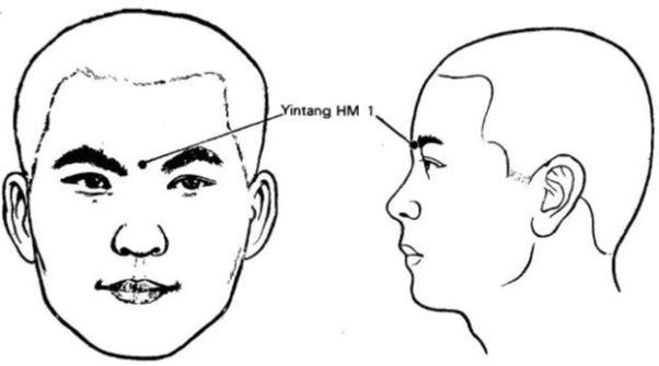 Yin Tang HM1